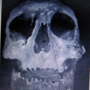 Cráneo de Bermudo III
